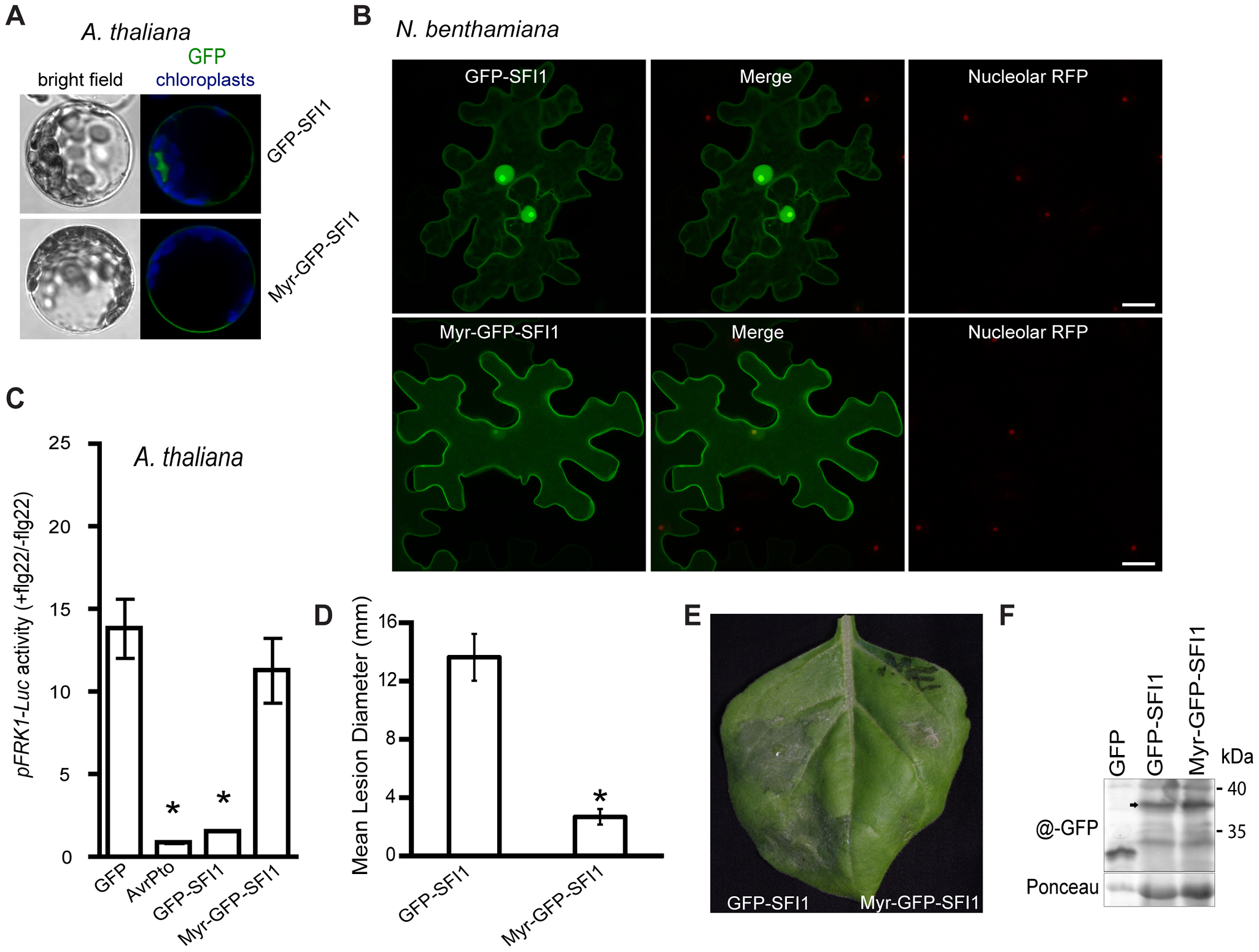 Importance of the nuclear localization of SFI1 for suppression of flg22-triggered <i>pFRK1-Luc</i> expression in <i>A. thaliana</i> and for <i>P. infestans</i> colonization in <i>N. benthamiana</i>.