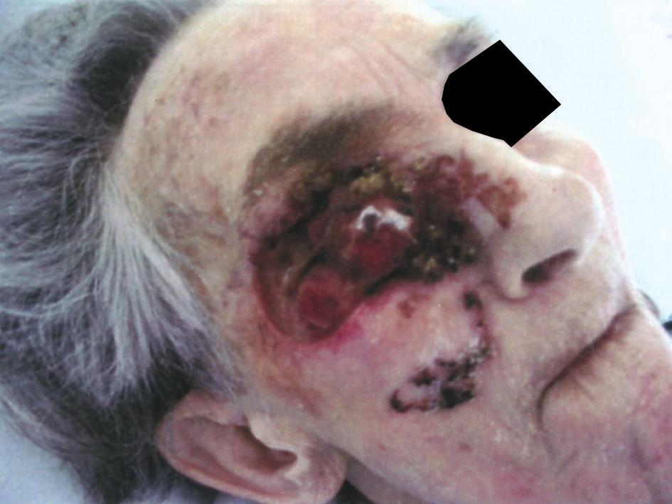 Rozsáhlý exulcerovaný basaliom tváře u imobilní staré ženy Fig. 2. Extensive exulcerated basalioma of the face in an immobile elderly female
