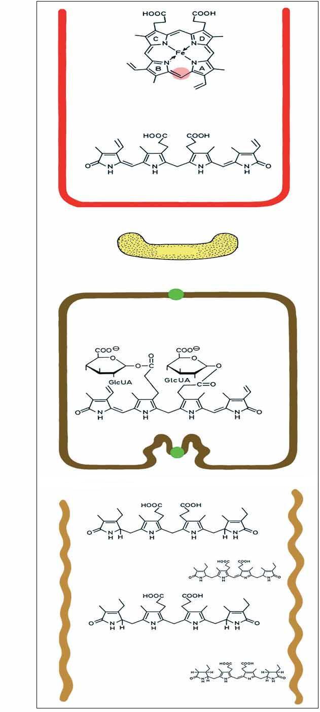 Odbourávání hemu na žlučová barviva a rozdělení hyperbilirubinemií podle převažujícího typu bilirubinu v séru [44].