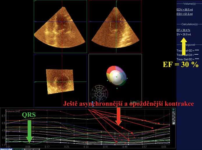 Obr. 7A–7C. Trojrozměrná echokardiografie (volumetrie levé komory) v hodnocení synchronie stahu. Obr. 7C. Tentýž pacient při stimulaci hrotu pravé komory. Elektrická i mechanická aktivace levé komory trvají nejdéle, značná asynchronie stahu (červené šipky) má za následek další pokles celkové ejekční frakce na 30 % (stav podobný například dilatační kardiopatii s blokádou levého raménka Tawarrova).