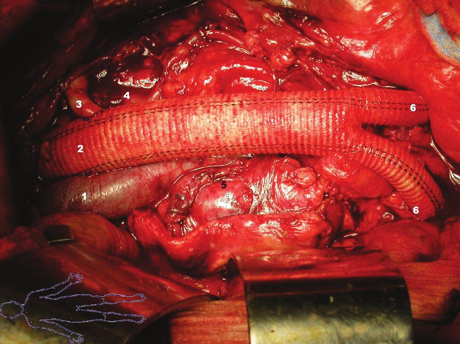 Konečný stav: 1 – vena cava inferior 2 – bifurkační protéza 3 – reimplantovaná arteria renalis sinistra 4 – vena renalis sinistra 5 – prošitý okraj vaku aneuryzmatu 6 – end-to-side anastomóza ramének bifurkační protézy na pánevní tepny Fig. 4. Final condition: 1 – vena cava inferior 2 – bifurcated prosthesis 3 – reimplanted left renal artery 4 – left renal vein 5 – stitched aneurysmal sac 6 – end-to-side anastomosis of the bifurcation prosthesis branches to pelvic arteries