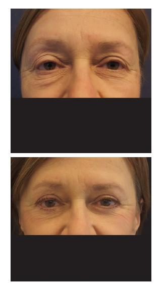 Blefaroplastika u šedesátitříleté ženy Fig. 2: Blepharoplasty in a 63 years old female