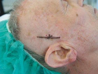 Zakreslený průběh pravostranné větve temporální arterie před její biopsií.