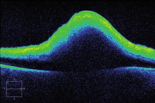 Horizontální transfoveolární OCT sken, pooperační nález po PPV