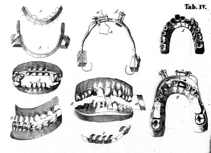 Ilustrace z Nesselovy knihy zobrazující nástroje k ošetřování chybně prořezaných zubů.