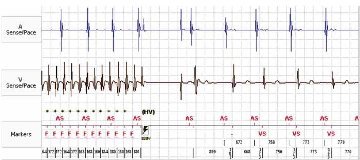 Záznam intrakardiálního EKG z paměti ICD. Epizoda fibrilace komor terminovaná ICD výbojem.