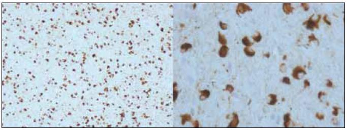 Alfa-synukleinopatie s argyrofilními oligodendrogliálními cytoplazmatickými inkluzemi, patologický obraz přiřazovaný k fenotypu multisystémové atrofie (zvětšení 100× a 400×). <sup>©</sup>Ústav patologie LF UP a FN Olomouc