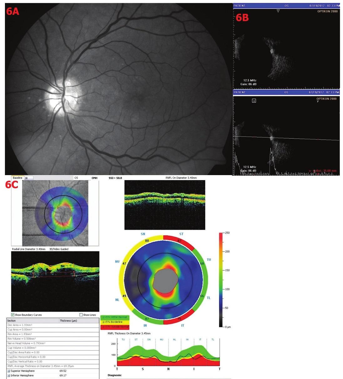 Drúzová papila stupně II. 6A – Red-free fotografie – papila neostře ohraničená, okraje papily hrbolaté – drúzy, 6B – Sonografie A i B scan – v oblasti papily ZN vysoce echogenní ložisko, odpovídající klinickému nálezu drúzy, 6C – OCT – analýza RNFL – rozsáhlý úbytek RNFL, TSNIT křivka superiorně při hranici normy, pod dolní hranicí inferiorně, průměrná tloušťka RNFL je 69,35 μm