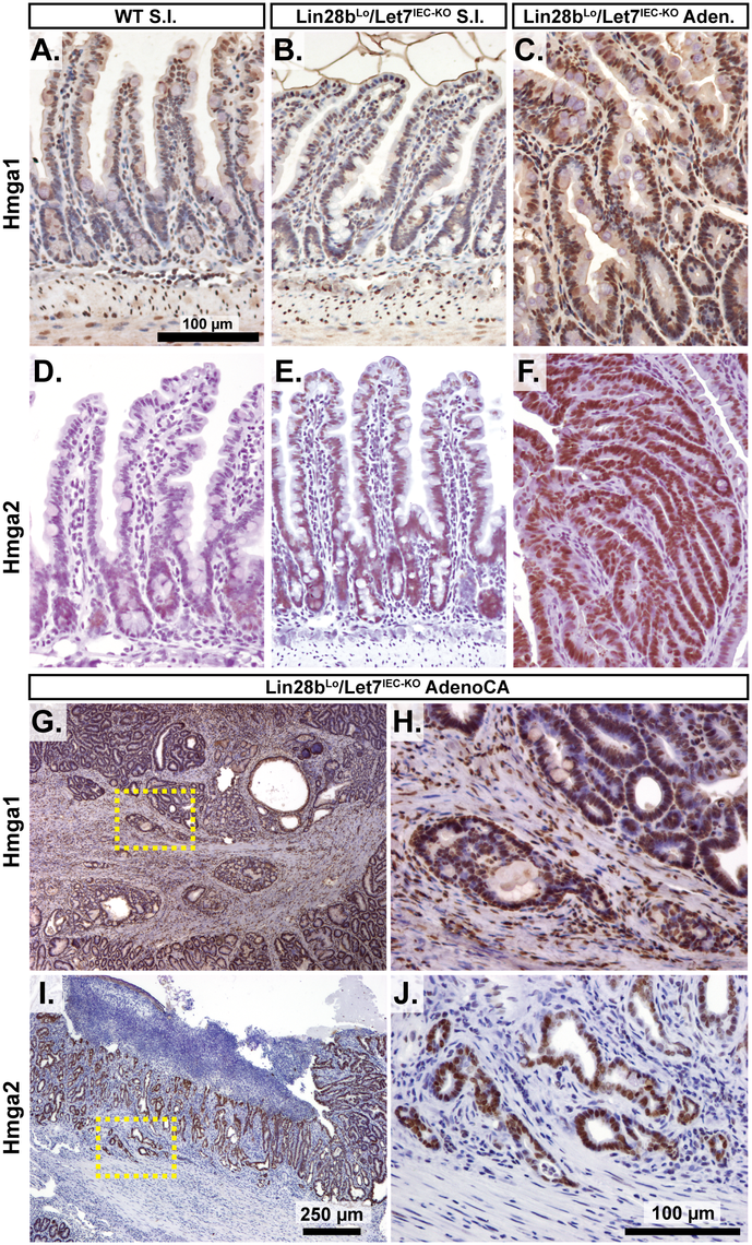 Hmga1 and Hmga2 proteins are increased in invasive areas of adenocarcinomas.