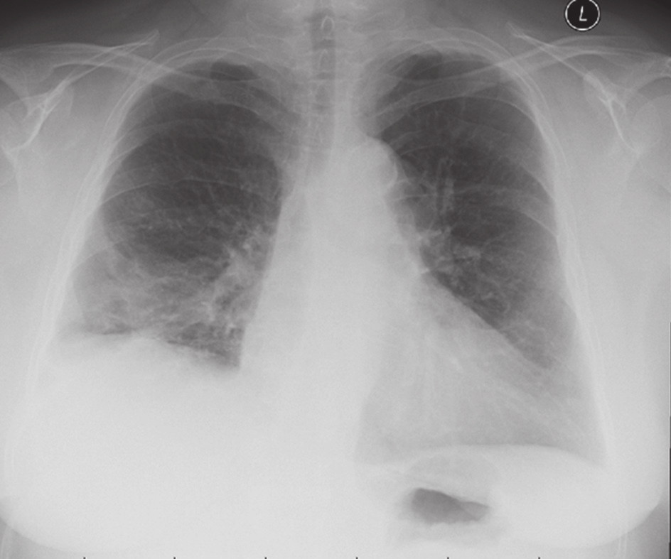 Obr. 2. RTG po retransplantaci Fig. 2. Chest X-ray after re-transplantation