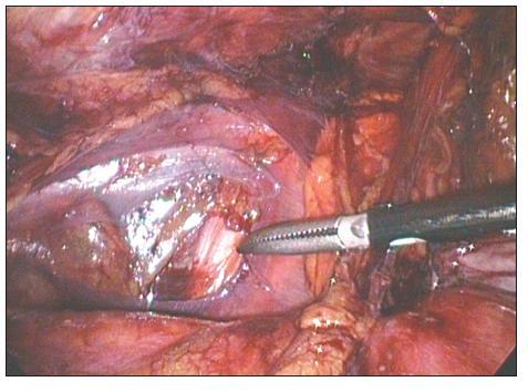 TAPPlevého třísla. Špička disektoru ukazuje na r. femoralis n. genitofemoralis Fig. 2. TAPPof the left groin. The dissector tip points at r. femoralis n. genitofemoralis