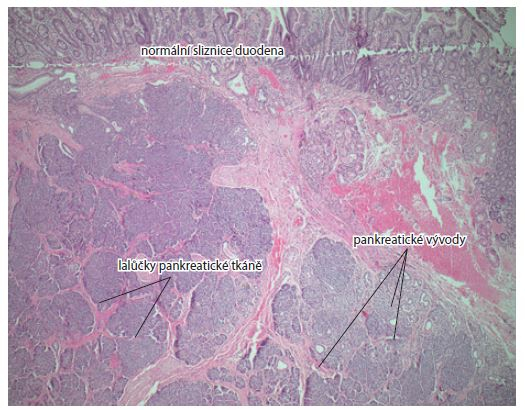 Normální duodenální sliznice, acini, pankreatické vývody. Barvení hematoxylin-eozinem, zvětšení 5×.<br> Fig. 4. Normal duodenal mucosa, acini, pancreatic ducts. Haematoxylin and eosin staining, magnification 5×.