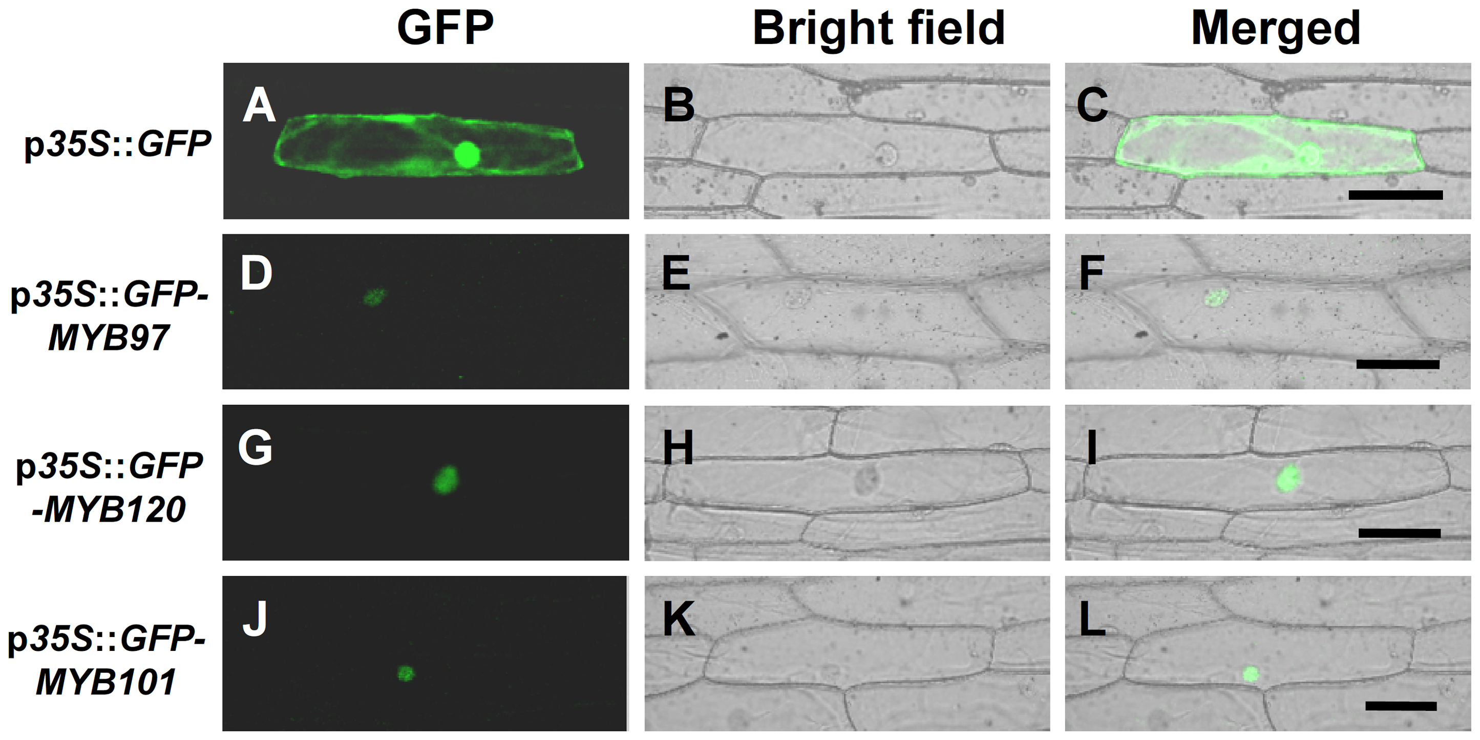 Subcellular localization of GFP-MYB fusion proteins.