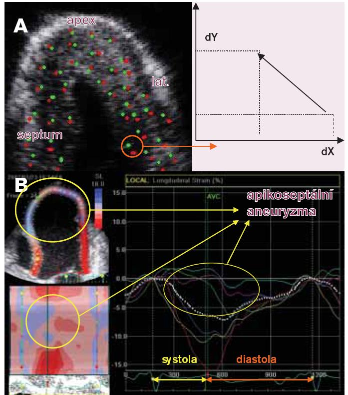 Základní principy speckle tracking echokardiografie a její hodnocení. A. Ultrazvukové vlnění vytváří interferenci při průchodu tkání myokardu vdůsledku odrazu, lomu a pohlcení specifické ultrazvukové obrazce podobné skvrně – speckle. Tyto speckle jsou pomocí speciálního software rozpoznávány zdvourozměrného zobrazení – B-mode a jsou detekovány během celého srdečního cyklu v jednom R-R intervalu při současně registrovaném EKG. Poloha speckle se tak mění během srdečního cyklu včase od časné systoly (červený bod) kpozdní diastole (zelený bod), přičemž off-line je vypočítávána změna polohy daného speckle-displacement (mm), dále rychlost změny této pozice (cm/s), míra deformace daného segmentu- strain (%) a rychlost této deformace- strain rate (s-1) pro danou vyšetřovanou oblast zájmu, která ve většině případů odpovídá segmentu. Uvedené parametry jsou vypočítávány pro dvě na sebe kolmé roviny vdaném zobrazení. Pro projekce na dlouhou osu LK jsou měřeny longitudinální a transverzální charakteristiky, pro projekce na krátkou osu LK radiální a cirkumferenciální charakteristiky. Navíc ze 3 projekcí vkrátké ose vjednotlivých úrovních LK (baze, papilární svaly a apex) lze vypočítat regionální a globální rotaci respektive torzi LK- viz výše (volně podle Marwicka [4]). B. Off-line analýza je prováděna ve speciálnímsoftwarovém prostředí. Vlevé horní části je vsuperponovaném dvourozměrném zobrazení zapikální 4dutinové projekce patrná hodnota vrcholového longitudinálního systolického strain - ε (%) vbarevné škále. Již ztvaru LK je patrné, že se jedná o pacienta po proběhlém transmurálním infarktu přední stěny (ověřené magnetickou rezonancí) sremodelací LK do apikoseptálního aneuryzmatu. Ve třech segmentech LK uvedené projekce (midseptální označený světle modře, apikoseptální - zeleně, apikolaterální - fialově) je patrná podle barevné škály minimální až lehce pozitivní deformace značící dyskinezi dané oblasti. Nejlépe se aktivně kontrahuje, tedy systolicky deformuje podle parametru 