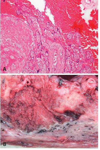 <b>Placenta accreta</b>. Hysterektomie těsně po porodu pro akrétní placentu, pacientka 40 let, stav po těžké endometritidě v minulosti. <b>A</b>: naprosté chybění deciduální tkáně, přímý kontakt choriových klků s myometriem (HE, zvětš. 100x). <b>B</b>: makrofoto.