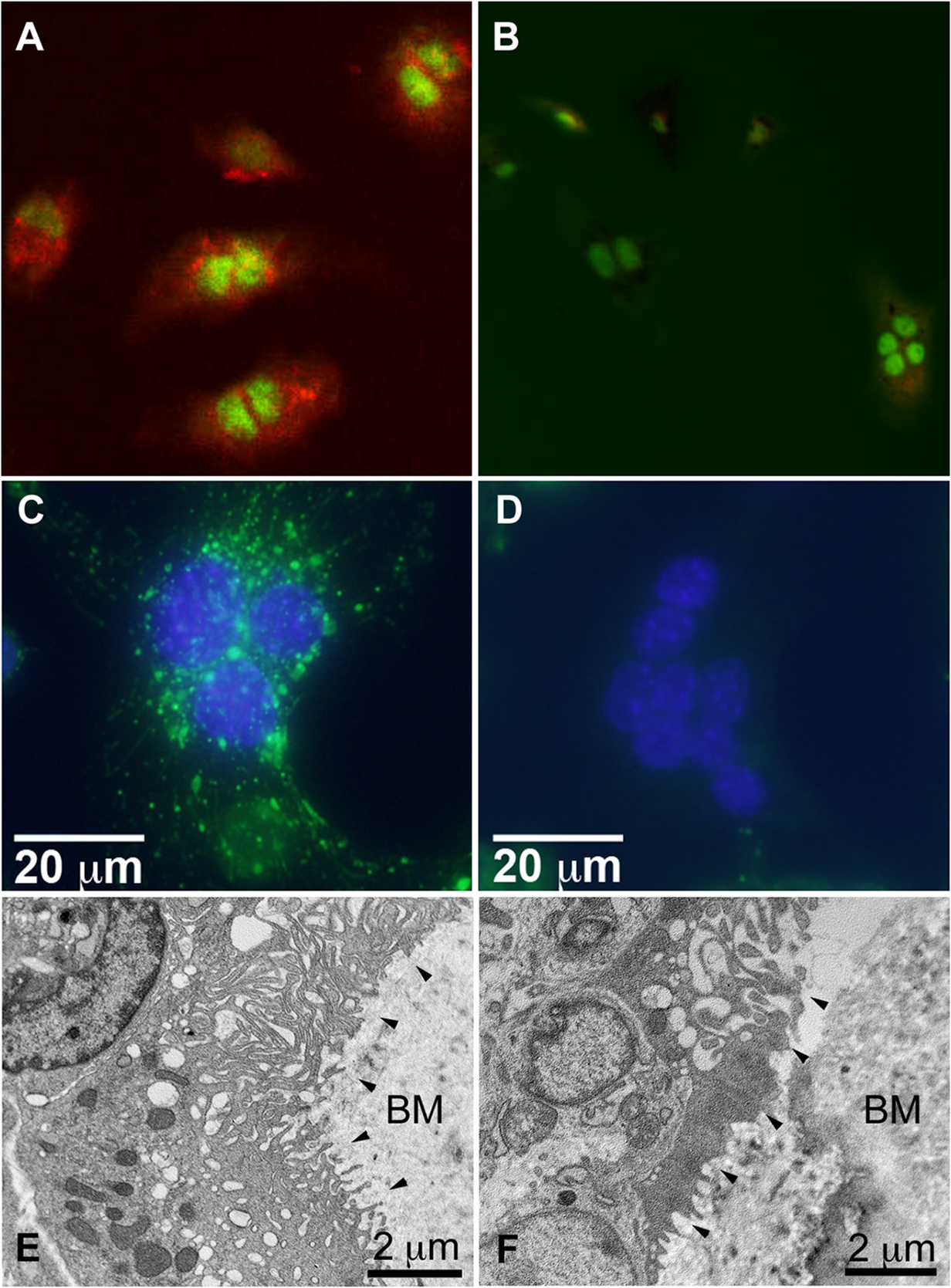 Snx10-deficient osteoclasts are unable to acidify have impaired endosomal pathways, and have defective ruffled borders.
