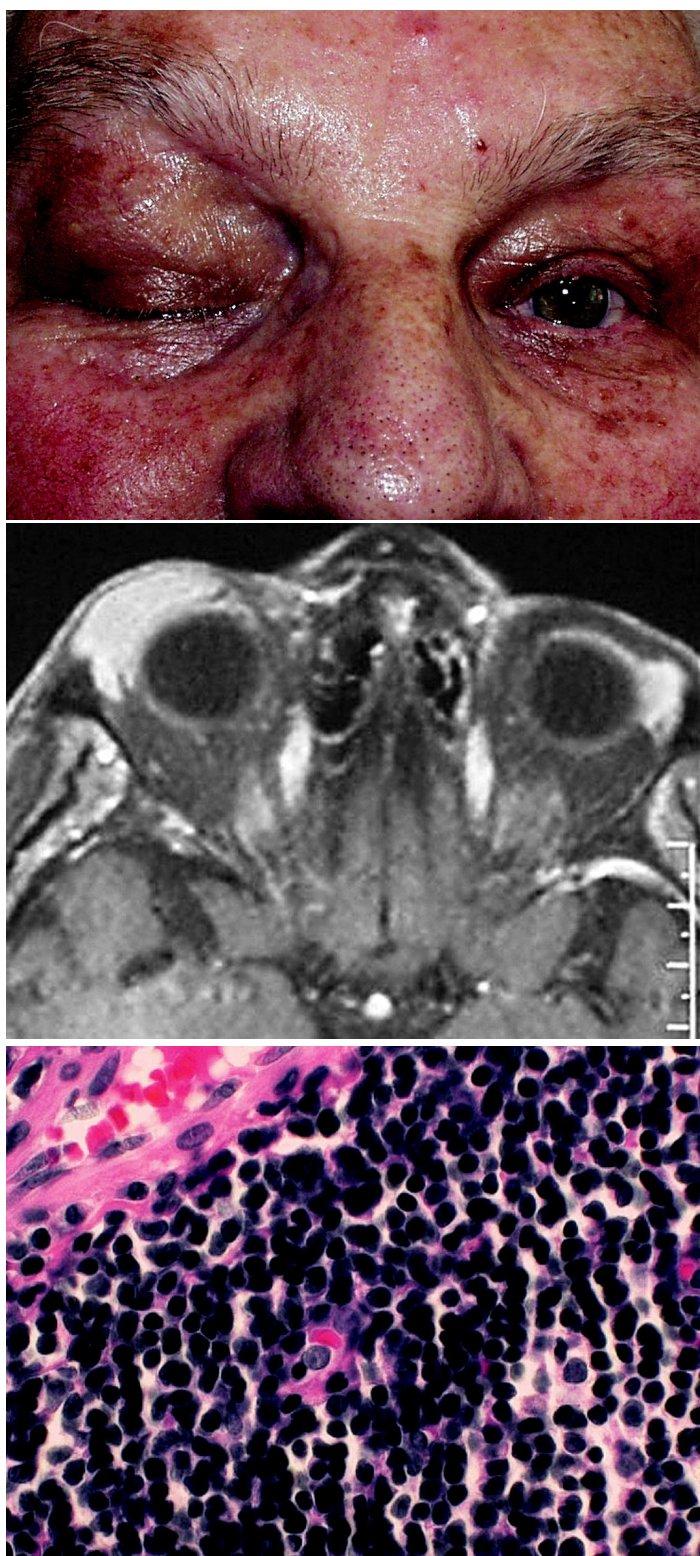 a. Ptóza horního víčka vpravo podmíněná tumorózním vyklenutím b. MR: tumorózní prominence horního víčka vpravo c. Histologie: MALT-lymfom, parafin. řez, barvení hematoxylin- eosin, zvětšení 500krát