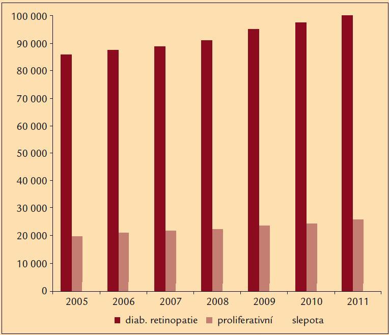 Počet nemocných s diabetickou retinopatií (ÚZIS 2012).