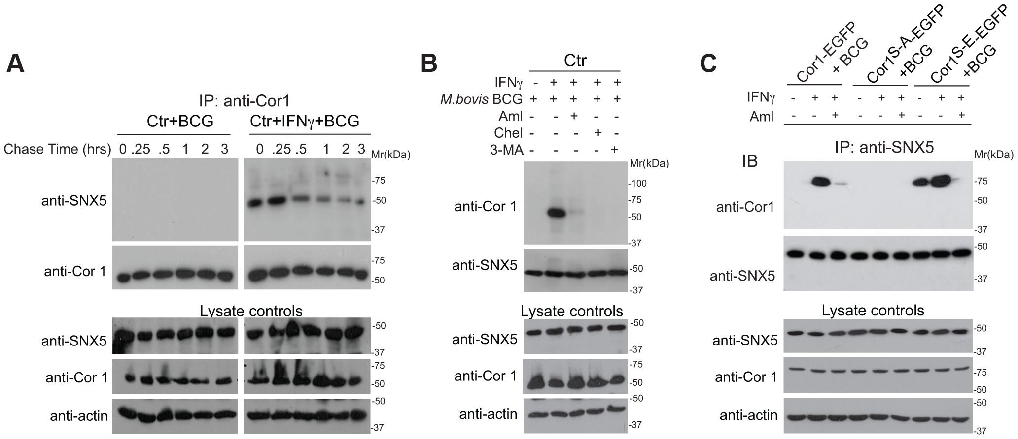 Association of sorting nexin 5 with coronin 1 in IFN-γ activated macrophages.