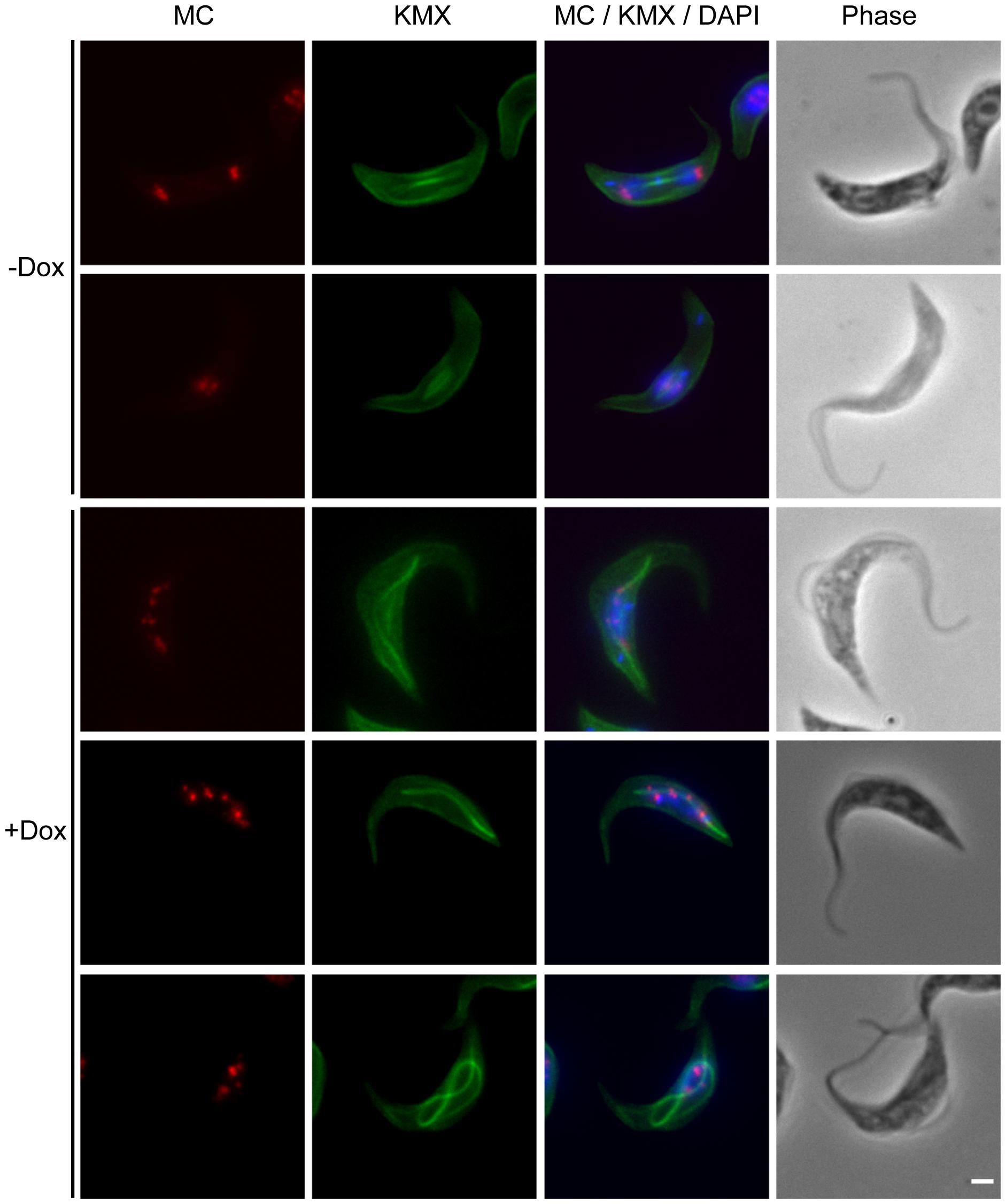 TbKif13-1 depletion results in chromosome segregation defects.