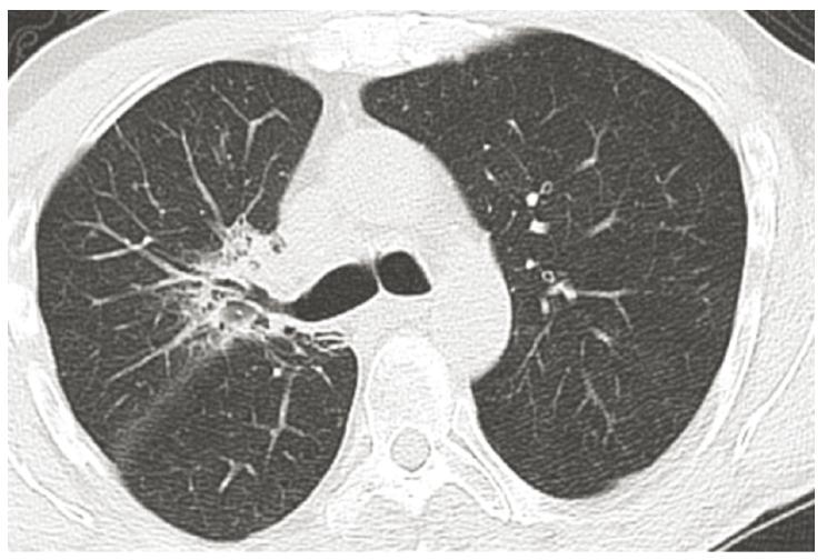 Progrese onemocnění – infiltrace pravého plicního hilu