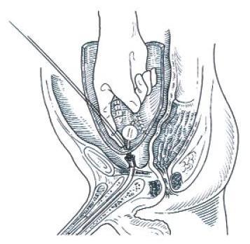 Obr. 8C. Umístění neoveziky do pánve a anastomóza střeva s uretrou.