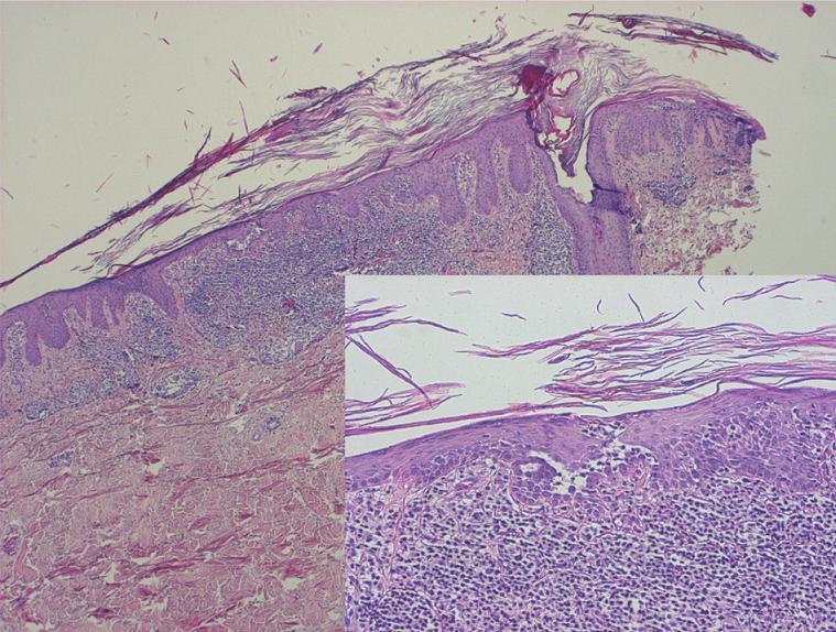 Klasická pityriasis rubra pilaris s fokální akantolýzou folikulárně akcentovaná hyperkeratóza s šachovnicovitě se střídajícími úseky parakeratózy, hypergranulóza