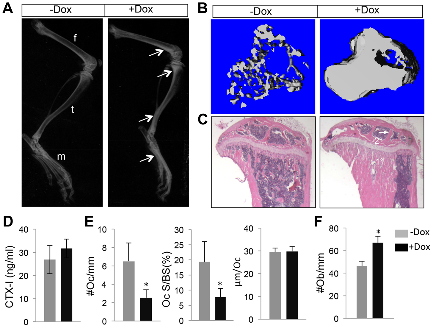 WNT7B enhances bone accrual in postnatal life.