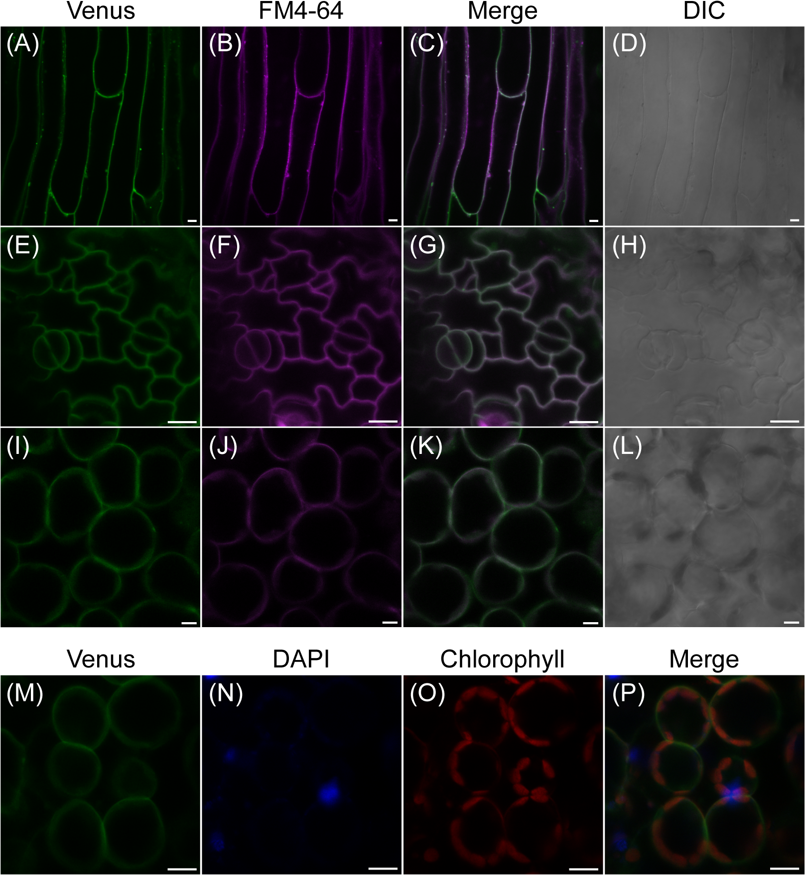 Subcellular localization of fluorescent AtPLC2-Venus in 12-day-old seedlings of <i>ProPLC2</i>:<i>PLC2-Venus</i> transgenic plants.