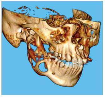 Na 3D CT rekonstrukci je jasně patrná již resorbovaná kompakta větve dolní čelisti