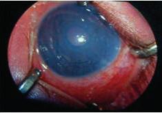 Glaukóm po operácii Loweho syndrómu