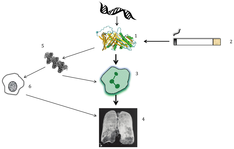 Simplified pathogenesis of lung disease in AATD.