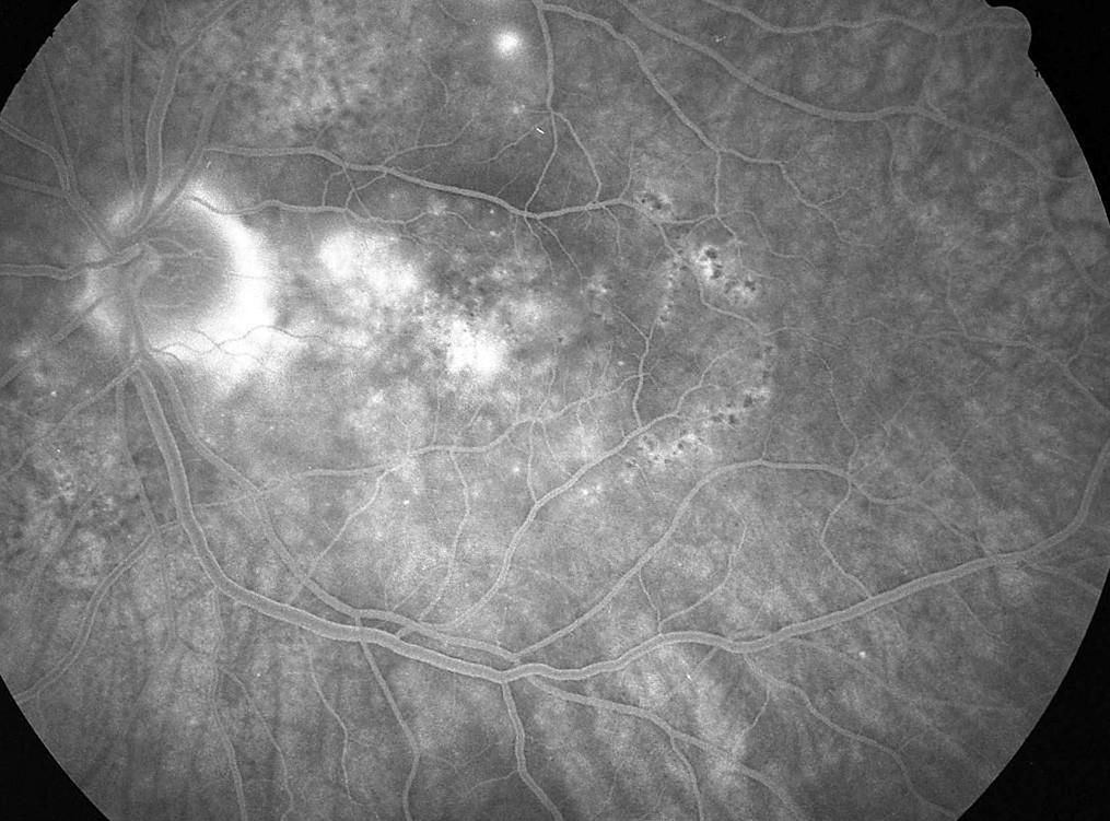 Pac. č. 5: Fluoresceínová angiografia ĽO po 2 týždňoch: pri TZN sa zvýrazňuje škvrnitá hyperfluorescencia s jemným presakováním, ablacia neuroepitelu retiny je takmer priložená, prítomná je rozsiahla porucha RPE. 2 body nad makulou ešte so zjavným presakovaním