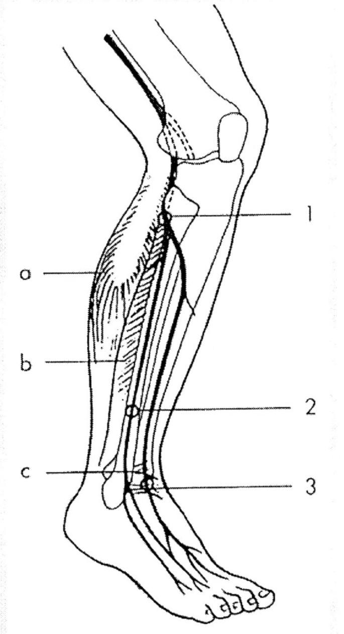 Úžiny a místa komprese n.peroneus Úžiny: 1 – peroneální tunel (pod vazivovým začátkem m. peroneus longus), 2 – r. superficialis (průstup fascií bérce), 3 – přední tarzální tunel. Svaly: a – m. triceps surae, b – m. peroneus longus, c – ligamentum