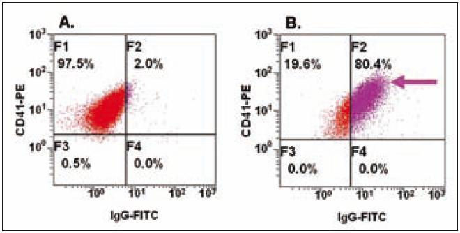 Detekce Ig asociovaných s PLT.