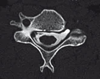 Příklad prokázané avulze kořene C5 vlevo dle CT myelografie (likvorová pseudocysta a chybějící ventrální i dorzální kořen vlevo). Fig. 3. An example of confirmed root avulsion of C5 left on CT myelography (CSF pseudocyst and missing ventral and dorsal root left).