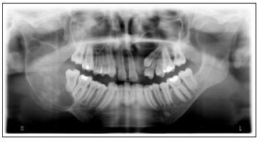 Na OPG snímku patrná rozsáhlá cysta pravé větve mandibuly a folikulární cysta loco 23