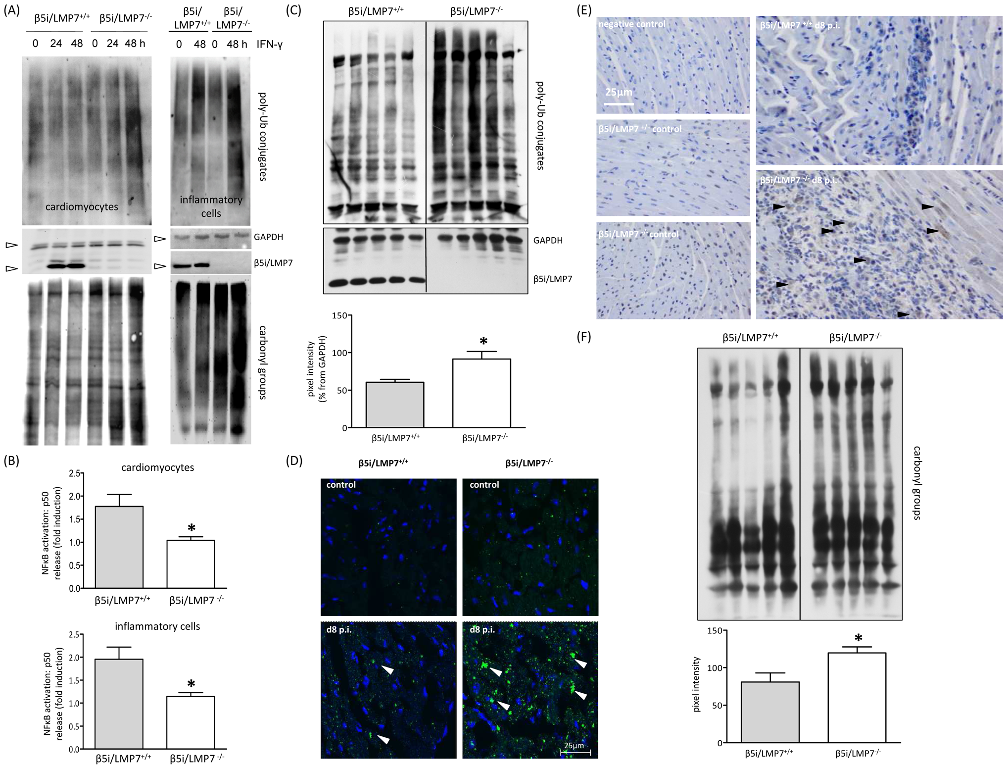 Accumulation of poly-ub protein conjugates in IP-deficient mice.