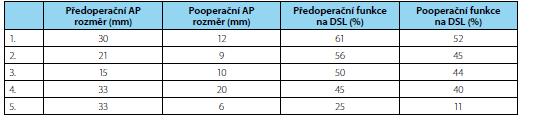 Pooperační pokles funkce ledviny po pyeloplastice u pěti pacientů Tab. 1. Post-operative deterioration of differential renal function in five patients