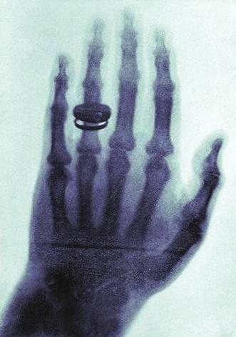 <i>Prosvícená ruka Röntgenovy ženy z ledna roku 1896.</i>