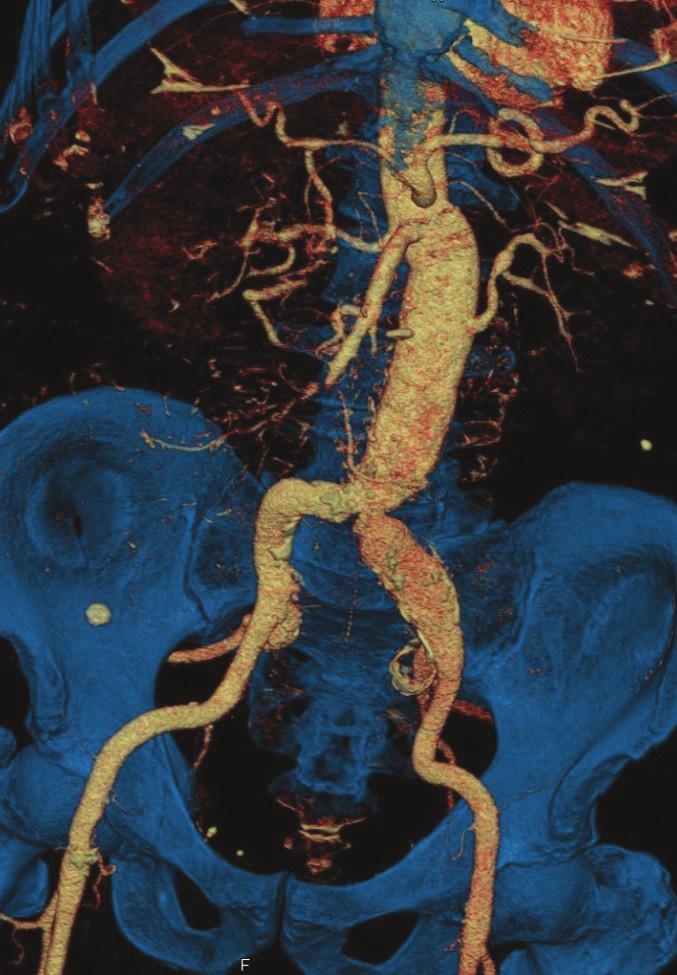CTA kontrola po roce od výkonu Fig. 4: Follow-up CTA one year after surgery