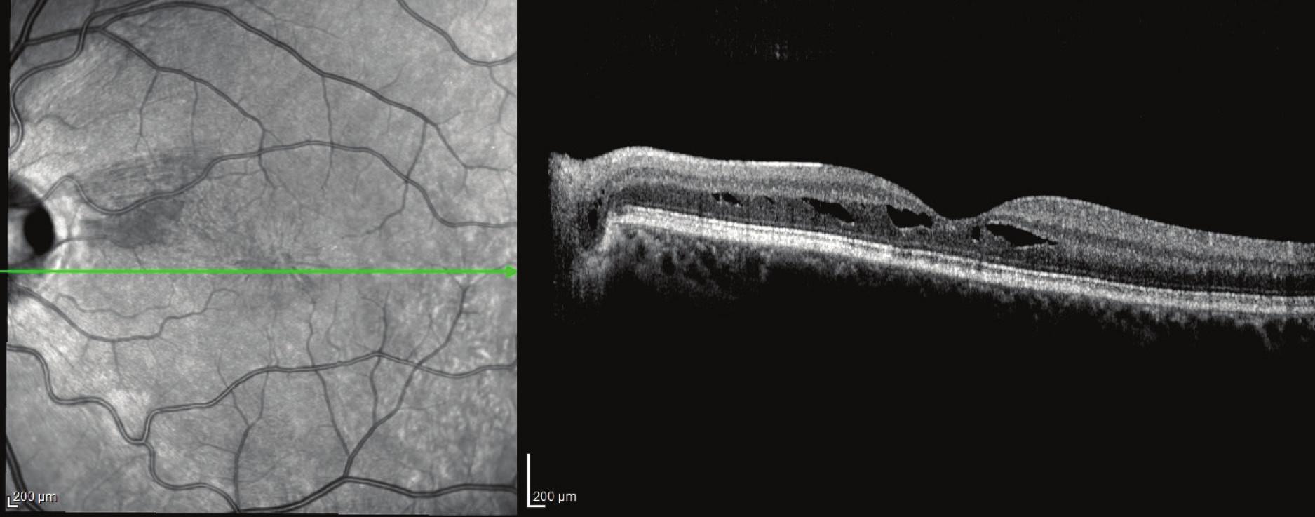 Pacient č. 4 Lineální horizontální transpapilární OCT sken OL po PPV, resorbce subretinální tekutiny a uzavřená komunikace mezi jamkou terče a makulární retinochízou zevní vrstvy sítnice