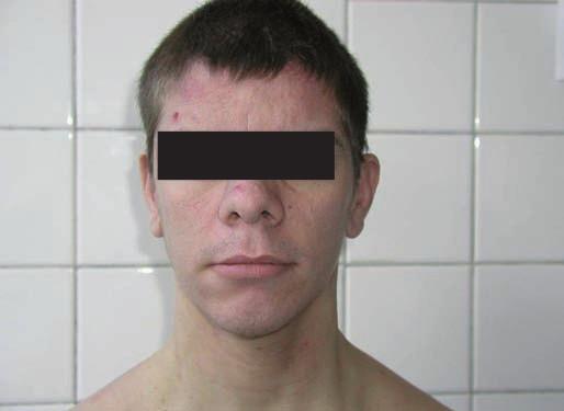 """Obr. 1, 2. Typický """"lví"""" obličej je obvyklou známkou hyper-IgE syndromu."""