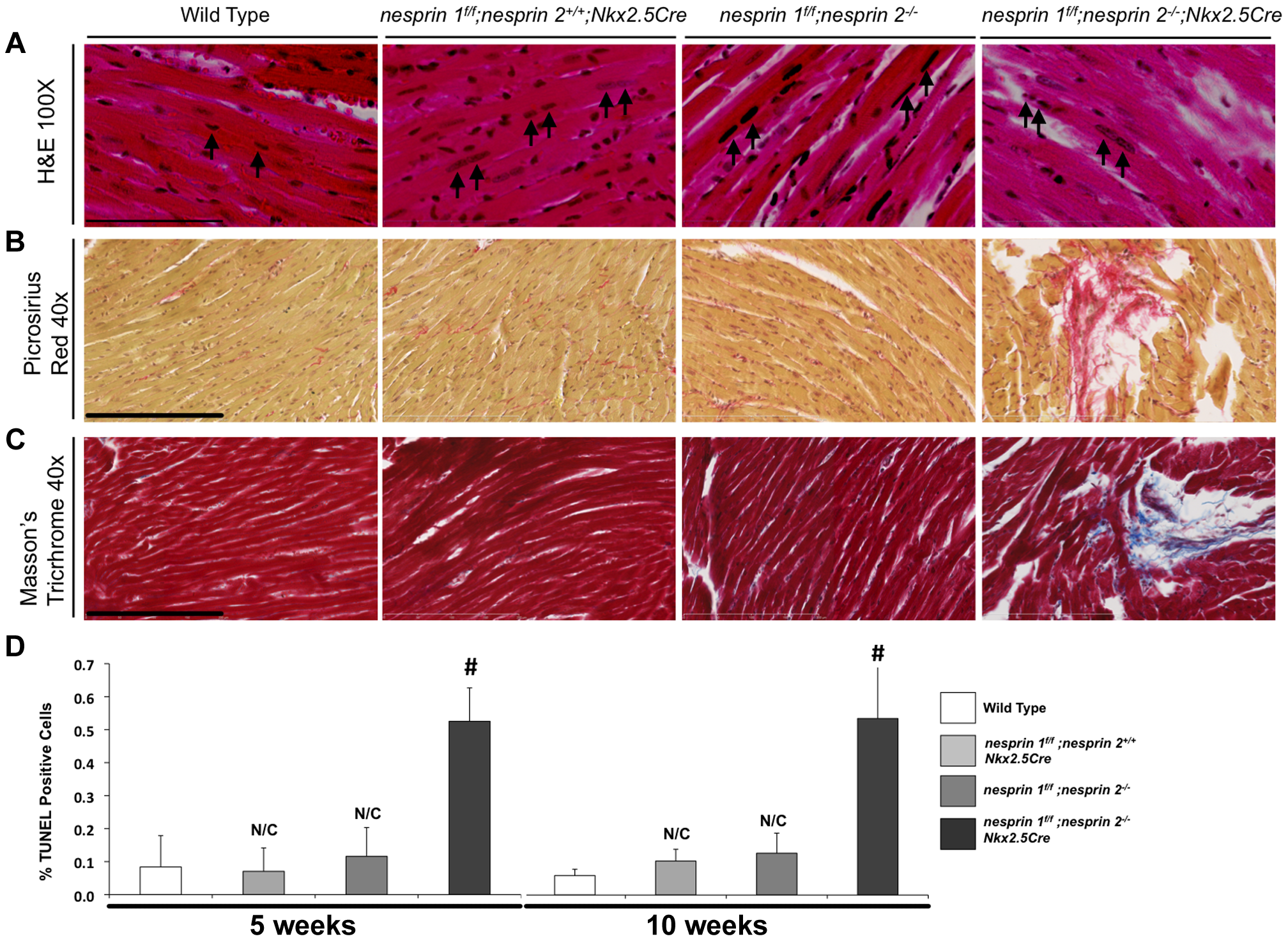 Histological and TUNEL analyses of Nesprin 1 and/or 2 ablation.