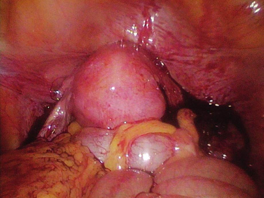 Stav po oboustranné salpingektomii, hemoperitoneum