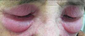 Výrazný edém kolem očí s heliotrop zbarvením u pacientky s dermatomyozitidou