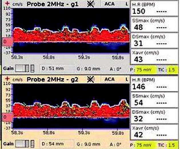 TCD záznam na a. cerebri media Zobrazuje nízké maximální rychlosti v systole a diastole (SSmax a DSmax ) s malou diferencí mezi těmito rychlostmi svědčící pro porušenou mozkovou autoregulaci.