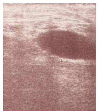 Ultrasonografický obraz abscesu pod jazvou mediálne v trigonum femorale u pacientky po embolektómii s následnou revíziou operačnej rany pre krvácanie.