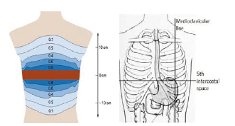 Fig. 1: Left: Contribution of impedance with increasing distance from the cross-section defined by the position of the electrode belt. [4] Right: The illustration of the stomach position and the level of the fifth intercostal space. Modified from [5].