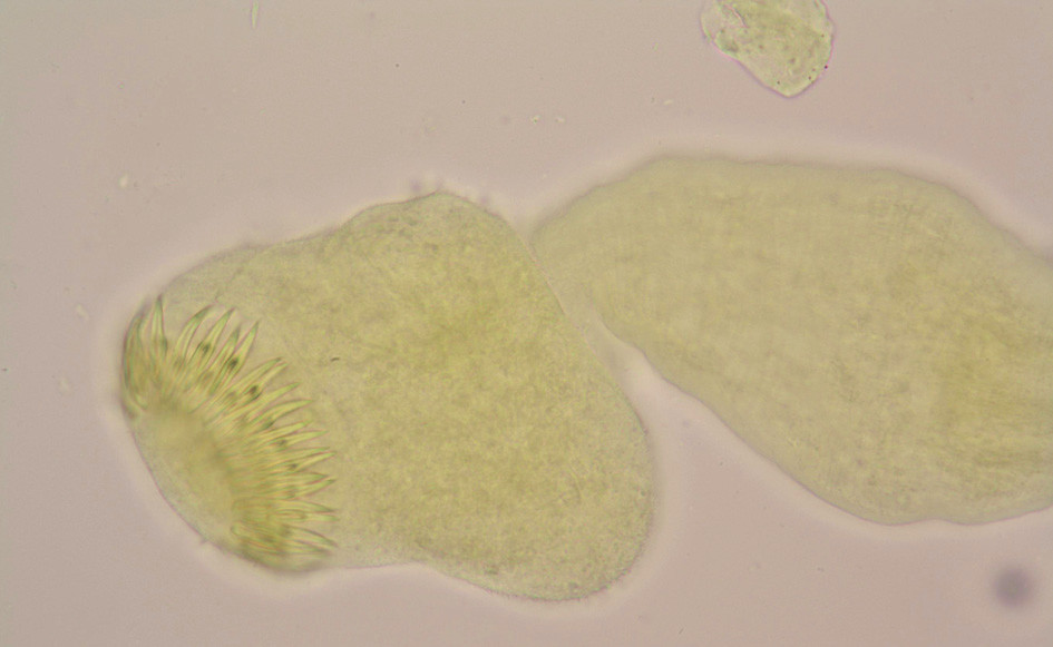 Parazitární skolex echinokoka s charakteristickými háčky získaný z obsahu tekutiny cysty (glycerinamonium pikrát, 1000x) Fig. 4: Echinococcus' scolex with characteristic hooks, obtained from the cyst fluid (glycerin-ammonium picrate, 1000x)